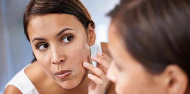 Seborrheic skin: oily, acne-prone, combination skin