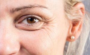 contour eye wrinkles